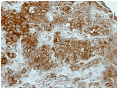 Immunohistochemistry (Formalin/PFA-fixed paraffin-embedded sections) - Anti-GCLM antibody (ab154017)