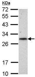 Western blot - Anti-RNF212 antibody (ab154021)
