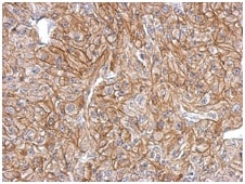 Immunohistochemistry (Formalin/PFA-fixed paraffin-embedded sections) - Anti-FLRT2 antibody (ab154023)