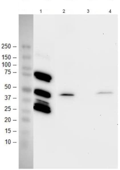 Western blot - Anti-p53 antibody [9D3DE3] (ab154036)