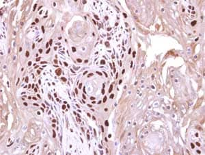 Immunohistochemistry (Formalin/PFA-fixed paraffin-embedded sections) - Anti-WDR62 antibody (ab154044)