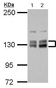 Western blot - Anti-VIP2 antibody (ab154046)