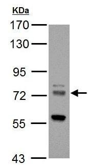 Western blot - Anti-HIP14 antibody (ab154054)