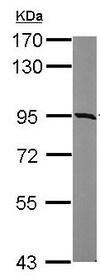 Western blot - Anti-KIAA0323 antibody - C-terminal (ab154059)