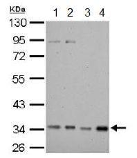 Western blot - Anti-HADH antibody (ab154088)