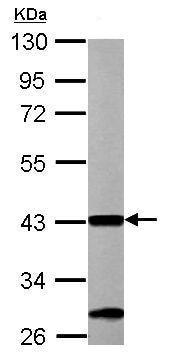 Western blot - Anti-ACAA1/Beta-ketothiolase antibody (ab154091)