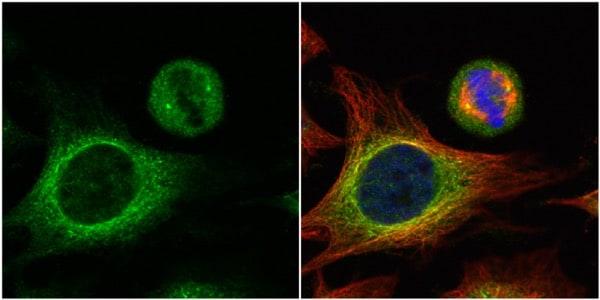 Immunocytochemistry/ Immunofluorescence - Anti-HOOK2 antibody (ab154109)