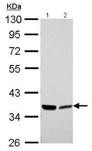 Western blot - Anti-Annexin-2/ANXA2 antibody (ab154113)