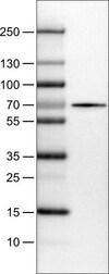 Western blot - Anti-SLC27A5/BAL antibody [CL0213] (ab154140)
