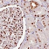 Immunohistochemistry (Formalin/PFA-fixed paraffin-embedded sections) - Anti-TLS/FUS antibody [CL0190] (ab154141)