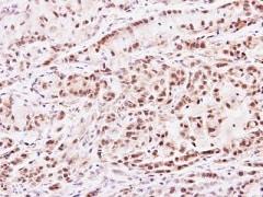 Immunohistochemistry (Formalin/PFA-fixed paraffin-embedded sections) - Anti-PRMT2/HMT1 antibody (ab154154)