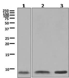 Western blot - Anti-ATOX1 antibody [EPR10352] (ab154179)