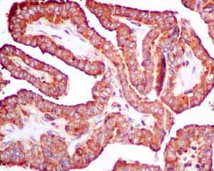 Immunohistochemistry (Formalin/PFA-fixed paraffin-embedded sections) - Anti-SCAMP2/SC2 antibody [EPR10185] (ab154181)