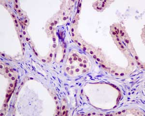 Immunohistochemistry (Formalin/PFA-fixed paraffin-embedded sections) - Anti-WDR77 antibody [EPR10708(B)] (ab154190)