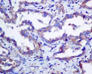 Immunohistochemistry (Formalin/PFA-fixed paraffin-embedded sections) - Anti-ERp57 antibody [EPR10678(B)] (ab154191)