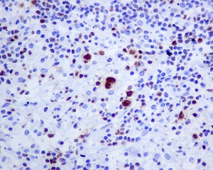 Immunohistochemistry (Formalin/PFA-fixed paraffin-embedded sections) - Anti-T-bet / Tbx21 antibody [EPR9302] (ab154200)
