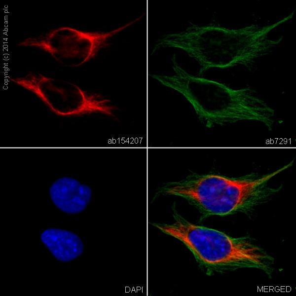 Immunocytochemistry/ Immunofluorescence - Alexa Fluor® 594 Anti-Vimentin antibody [EPR3776] - Cytoskeleton Marker (ab154207)