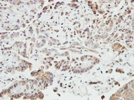 Immunohistochemistry (Formalin/PFA-fixed paraffin-embedded sections) - Anti-SHANK1 antibody (ab154224)