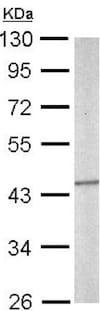 Western blot - Anti-SEPT5 antibody (ab154228)