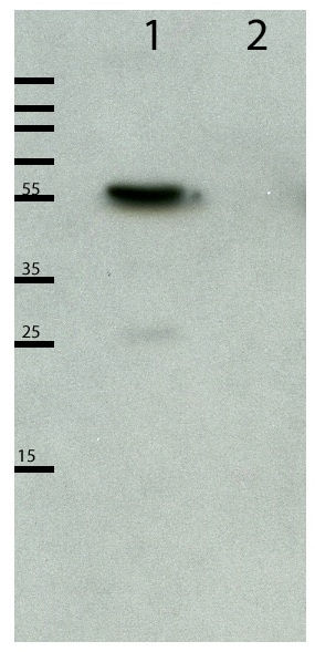 Western blot - Anti-DBR1 antibody (ab154230)