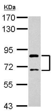 Western blot - Anti-SLCO1C1 antibody (ab154231)