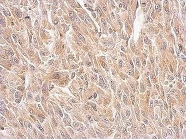 Immunohistochemistry (Formalin/PFA-fixed paraffin-embedded sections) - Anti-Bif-1 antibody (ab154236)