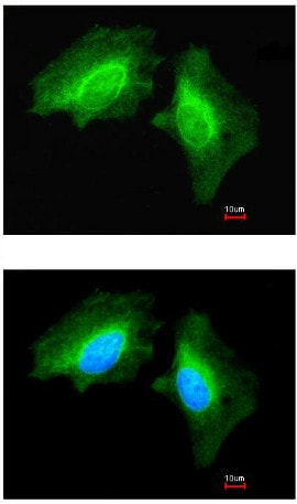 Immunocytochemistry/ Immunofluorescence - Anti-MAP4K6 antibody - C-terminal (ab154256)