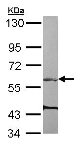 Western blot - Anti-ARHGEF3 antibody (ab154263)