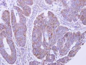 Immunohistochemistry (Formalin/PFA-fixed paraffin-embedded sections) - Anti-LACTB2 antibody (ab154267)