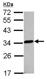 Western blot - Anti-LACTB2 antibody (ab154267)