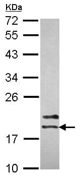 Western blot - Anti-NME2 antibody (ab154274)