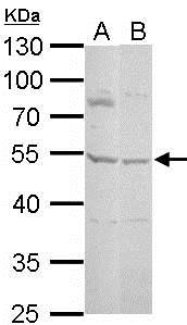 Western blot - Anti-Serpin A5 antibody (ab154275)