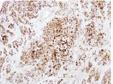 Immunohistochemistry (Formalin/PFA-fixed paraffin-embedded sections) - Anti-DCXR antibody (ab154290)