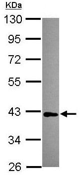 Western blot - Anti-MAB21L1  antibody (ab154311)