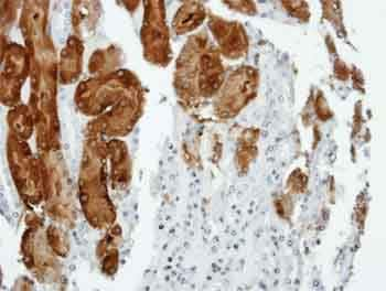 Immunohistochemistry (Formalin/PFA-fixed paraffin-embedded sections) - Anti-Anillin antibody - C-terminal (ab154337)