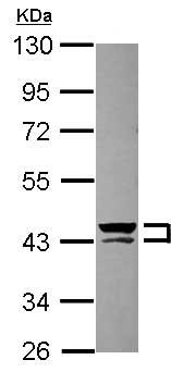 Western blot - Anti-Cytokeratin 13 antibody (ab154346)