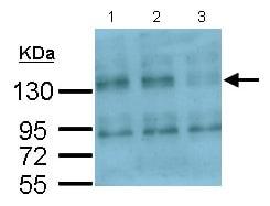 Western blot - Anti-Integrin alpha V antibody - C-terminal (ab154384)