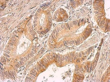 Immunohistochemistry (Formalin/PFA-fixed paraffin-embedded sections) - Anti-IL-8 antibody (ab154390)