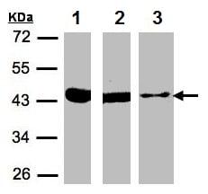 Western blot - Anti-ACAT1 antibody (ab154396)