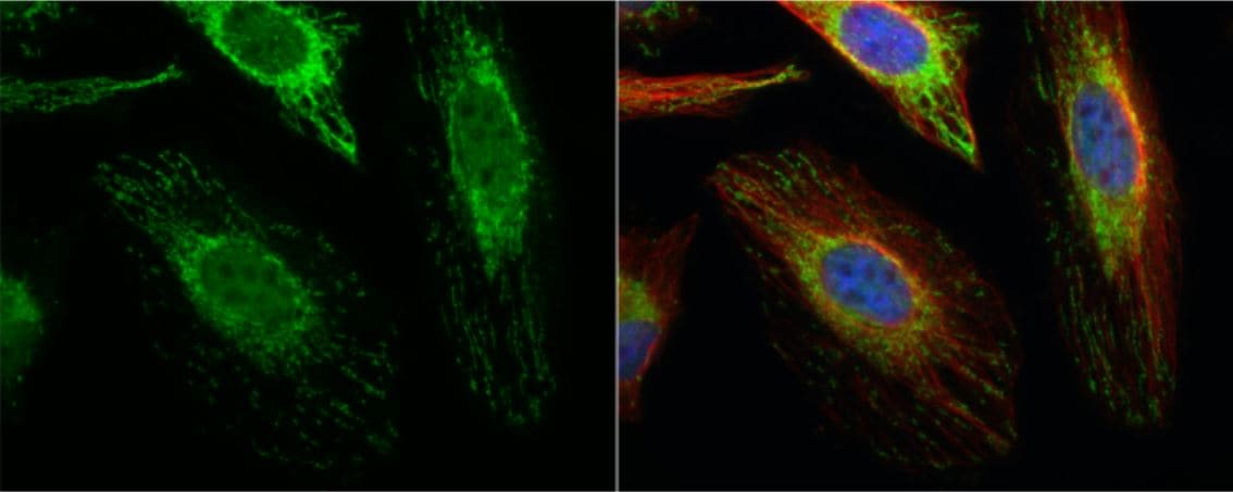 Immunocytochemistry/ Immunofluorescence - Anti-ACAT1 antibody (ab154396)