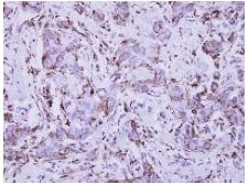Immunohistochemistry (Formalin/PFA-fixed paraffin-embedded sections) - Anti-IFNGR1 antibody (ab154400)