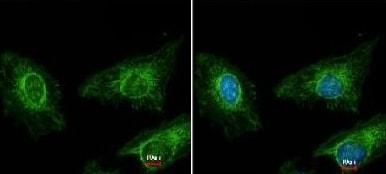 Immunocytochemistry/ Immunofluorescence - Anti-Asporin antibody (ab154404)