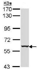 Western blot - Anti-Cytokeratin 4 antibody (ab154406)