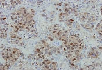 Immunohistochemistry (Formalin/PFA-fixed paraffin-embedded sections) - Anti-Mre11 antibody (ab154480)