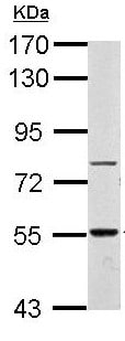 Western blot - Anti-ERCC6L2 antibody (ab154484)