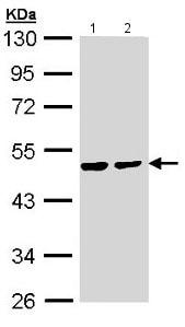 Western blot - Anti-PPM1A antibody (ab154489)