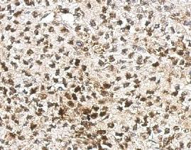 Immunohistochemistry (Formalin/PFA-fixed paraffin-embedded sections) - Anti-AF9 antibody (ab154492)