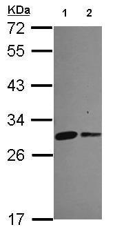Western blot - Anti-MIC19 antibody (ab154500)