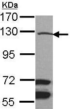 Western blot - Anti-MAP3K9 antibody (ab154506)