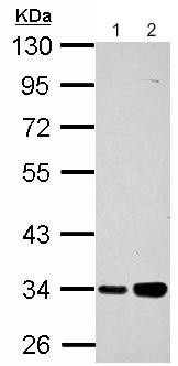 Western blot - Anti-PARP16 antibody (ab154510)